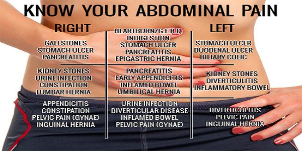 Abdominal pain chart kumpulannetizenheboh